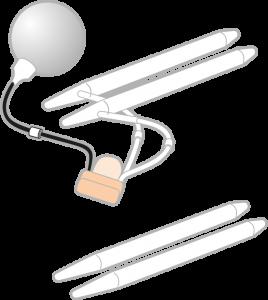 Penile Implant